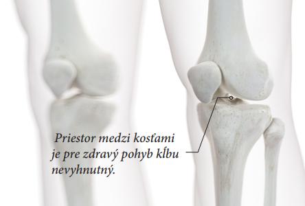Uvoľnenie a otváranie kĺbov